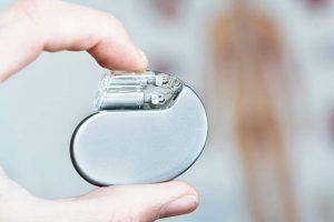 آریتمی قلبی و ابزار کنترل کننده آن