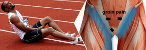 عامل کشیدگی عضله کشاله ران
