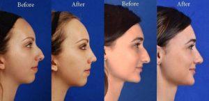 نتیجه جراحی زیبایی