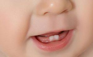 سن رویش دندان