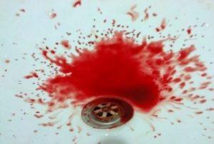 علل استفراغ خونی