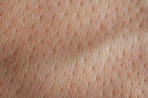 علل منافذ بزرگ پوست