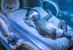 نوردرمانی در زردی در نوزادان