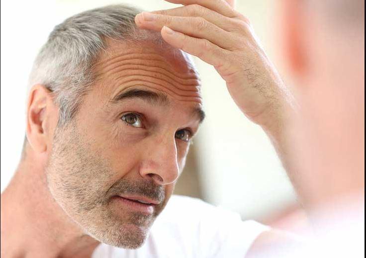 تغذیه سالم و ارتباط آن با کاهش ریزش مو