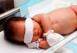 علل زردی در نوزادان